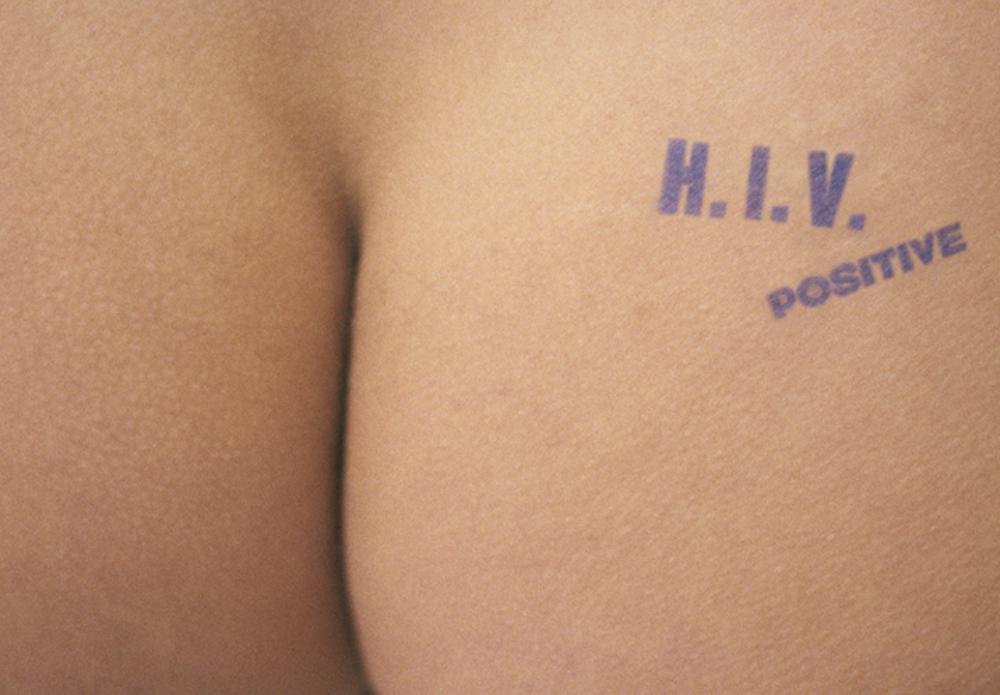 -®OlivieroToscani_1993_hiv